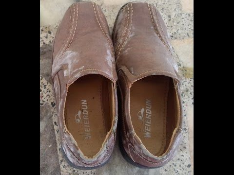 How To Kill Fungus In Shoes